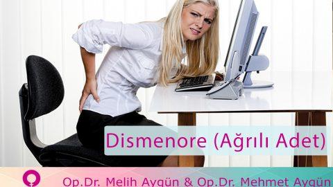 Dismenore (Ağrılı Adet) hakkında kısa bilgiler