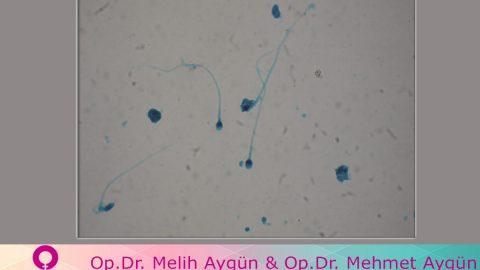 Düşük sperm sayısı sadece doğurganlık sorunu değil, diğer hastalıkların da habercisi olabilir