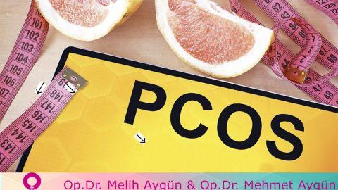 Polistik Over Sendromu Yaşayan Kadınlar İçin D Vitamini İyi Geliyor